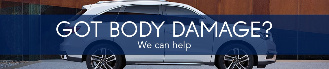 Body Shop FAQs | Erin Mills Acura